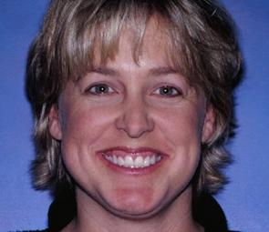 Lisa before extreme dental makeover